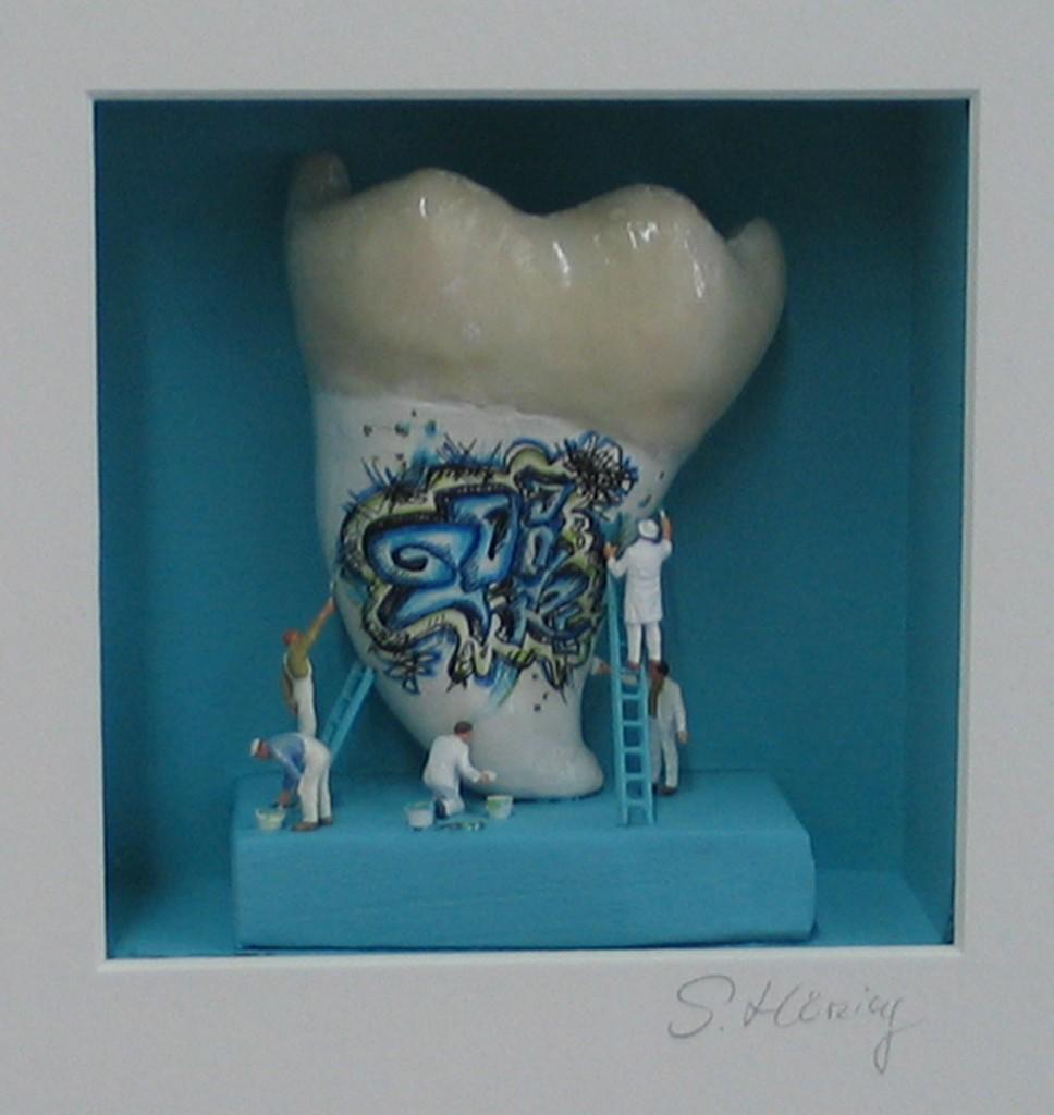 Zahn-Ausschnitt